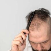 Hair Transplants, Scars and SMP
